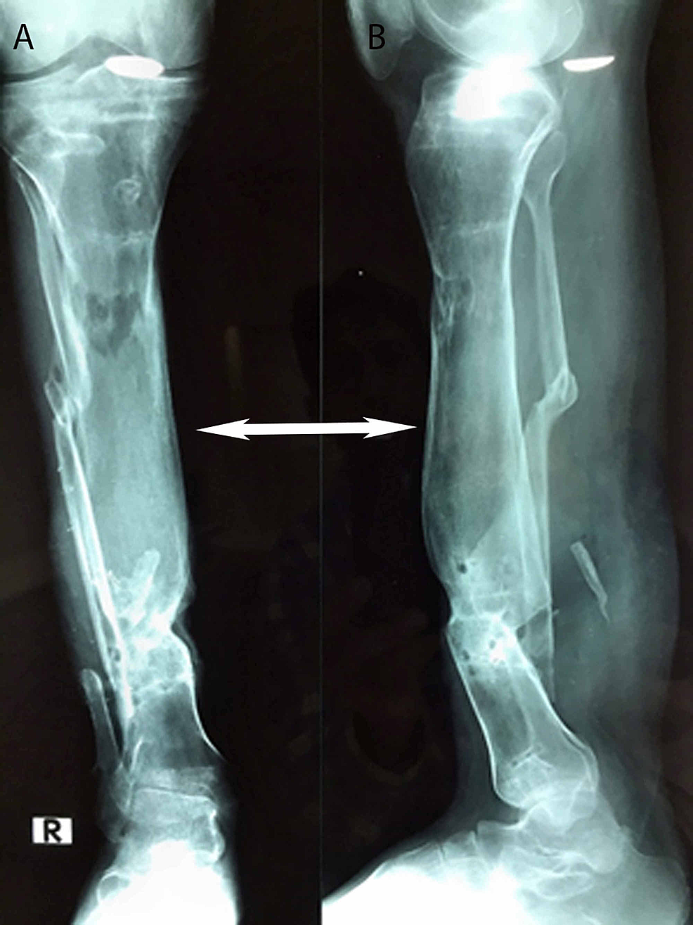 Postoperative-plain-radiographs-of-the-same-patient-after-removal-of-the-Ilizarov-frame,-showing-good-regeneration-of-bone-with-an-anteroposterior-view-(4A)-and-a-lateral-view-(4B)