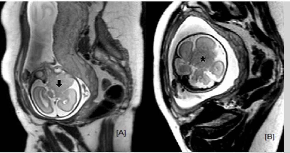 Fetal-MRI-brain.