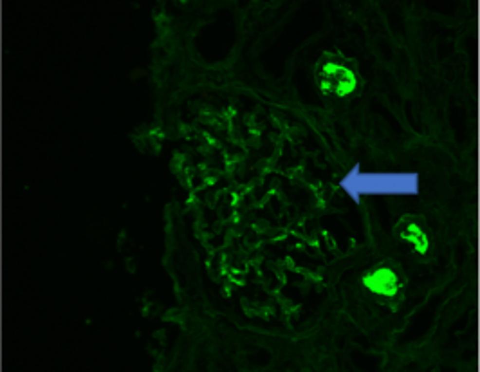 Immunoglobulin-A-(IgA)-deposition-on-the-nephron-(arrow)