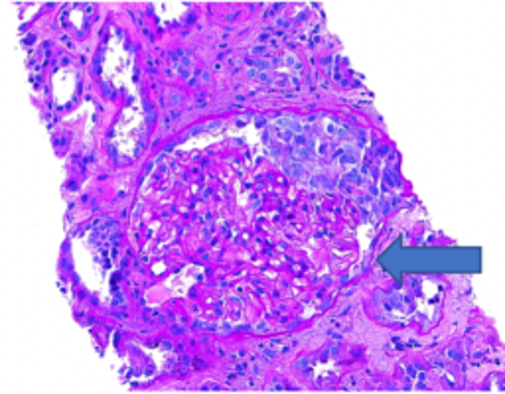 Specimen-showing-focal-crescentic-glomerulonephritis-(arrow)