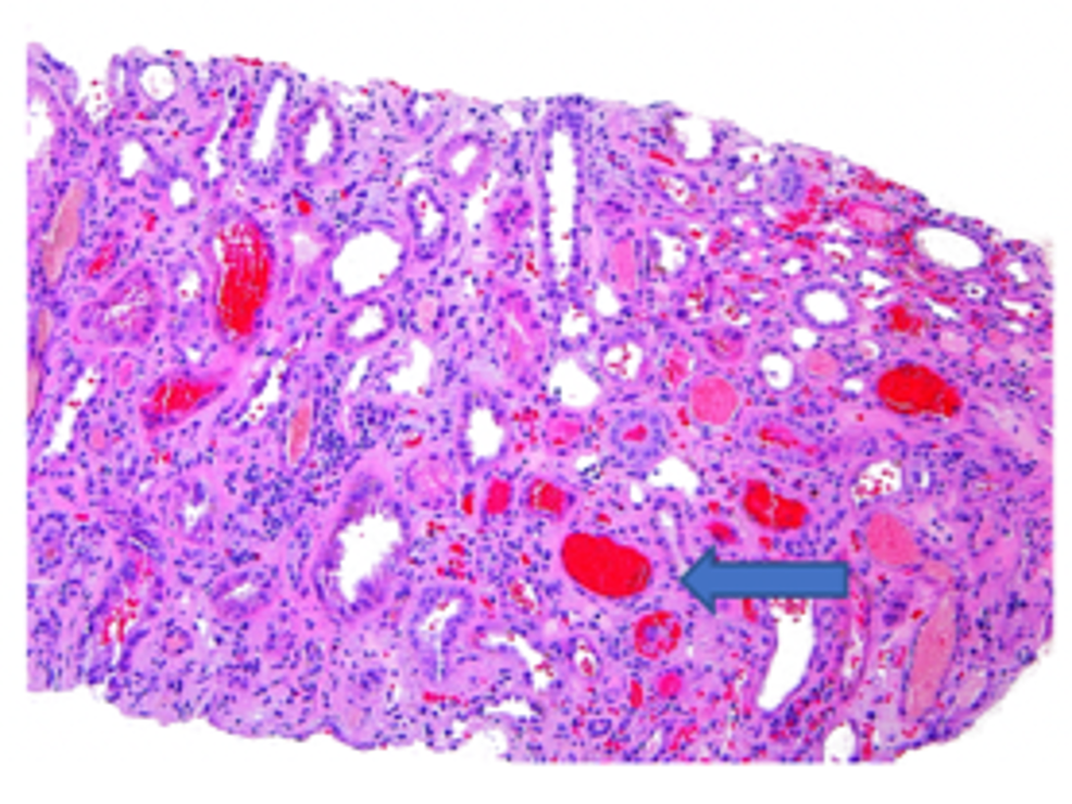 Red-blood-cell-cast-formation-(arrow)-in-the-nephron