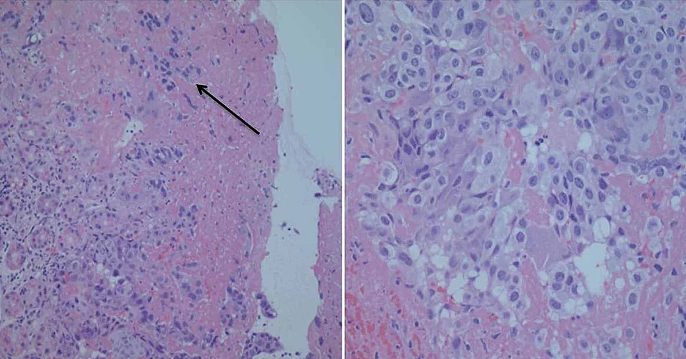 Histological-examination-showing-gastric-mucosa-with-surface-ulceration-and-infiltration-of-cytotrophoblast-rimmed-with-syncytiotrophoblast-(arrow)
