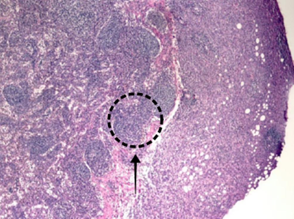 Lymph-node-positive-for-metastatic-carcinoma.