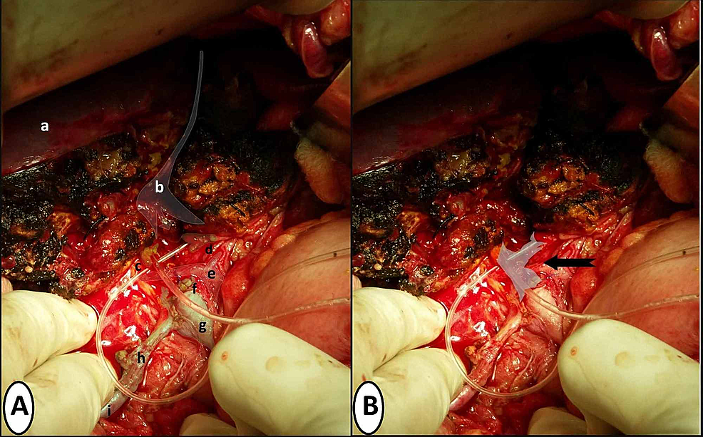 Per-operative-pictures-showing-related-anatomical-structures-and-loss-of-biliary-confluence-post-debridement-of-ischemic-necrotic-tissue-