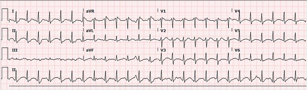 Electrocardiogram-on-arrival---Case-1
