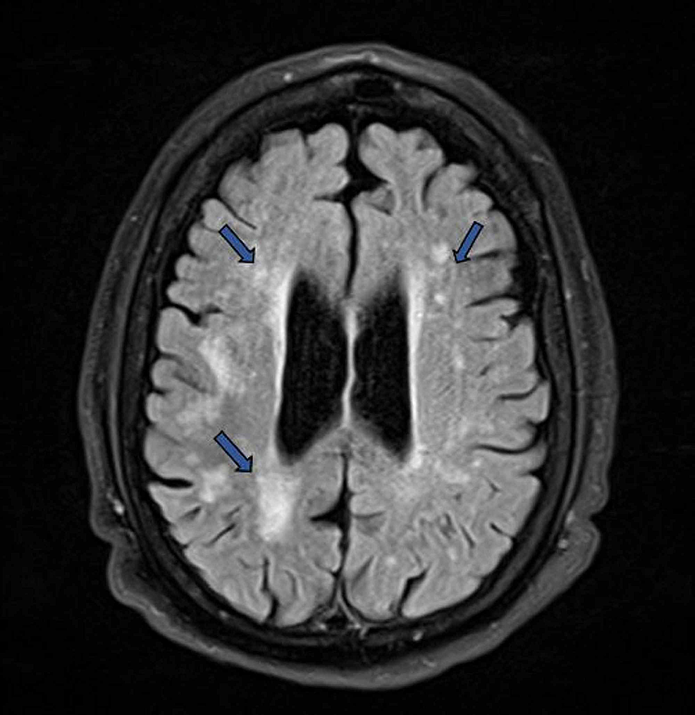 MRI-of-the-brain-showing-multifocal-and-confluent-hyperintense-lesions-in-the-periventricular-white-matter-(blue-arrows),-most-likely-due-to-chronic-small-vessel-ischemia.-