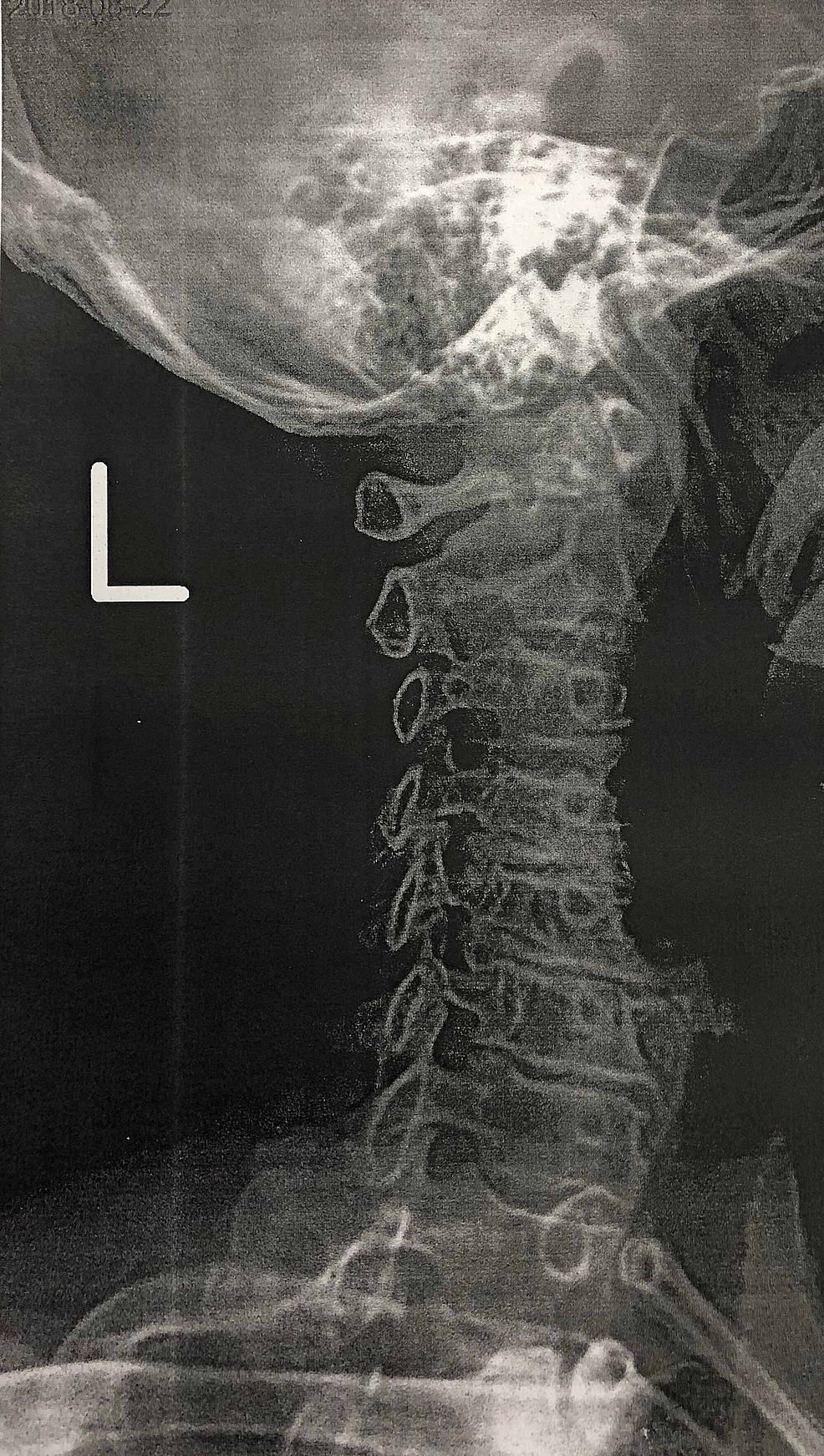Left-cervical-spine-x-ray-demonstrating-moderate-to-severe-degenerative-changes-at-the-level-of-C4-C7-with-intervertebral-foramen-narrowing,-consistent-with-symptomatic-cervical-spine-disease.
