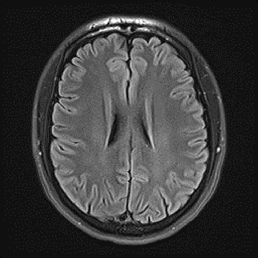 MRI-3T-brain-non-contrast-showing-normal-brain-with-no-evidence-of-demyelination.