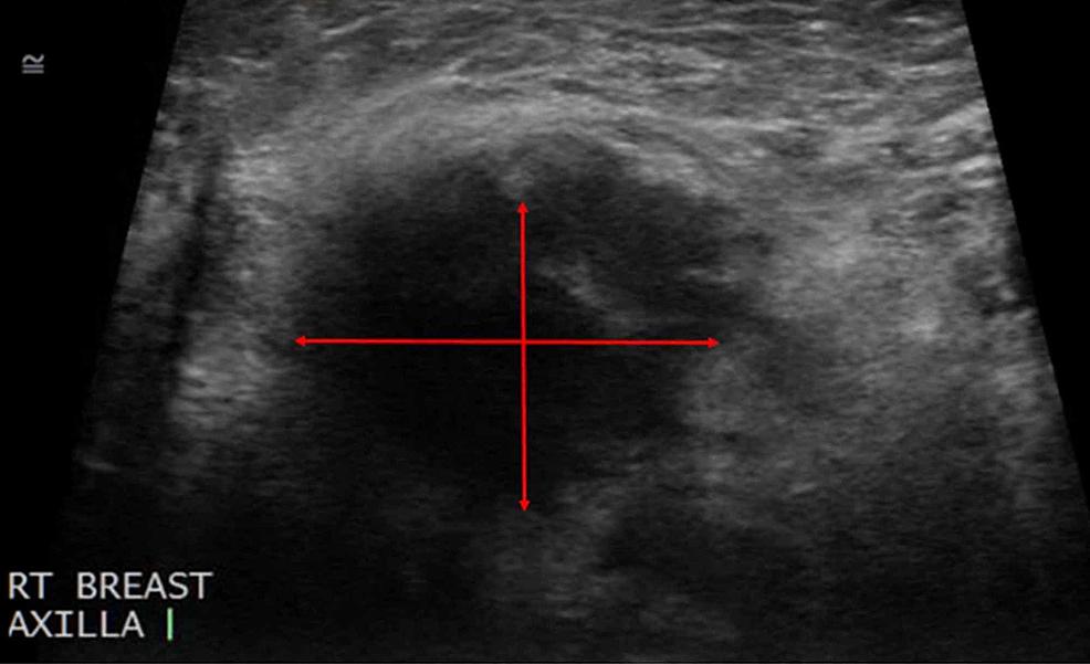 Ultrasound-of-the-Right-Axillary-Region