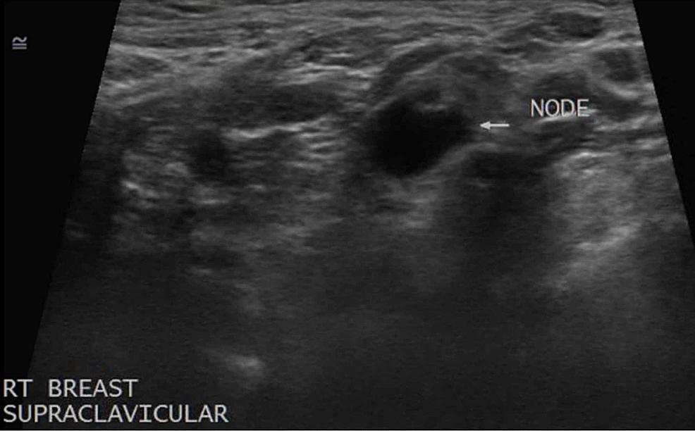 Supraclavicular-Lymphadenopathy