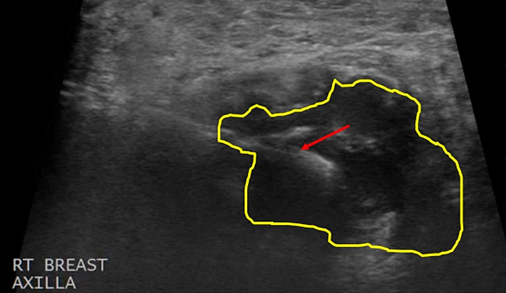 Ultrasound-Guided-Core-Biopsy-of-the-Right-Axillary-Mass