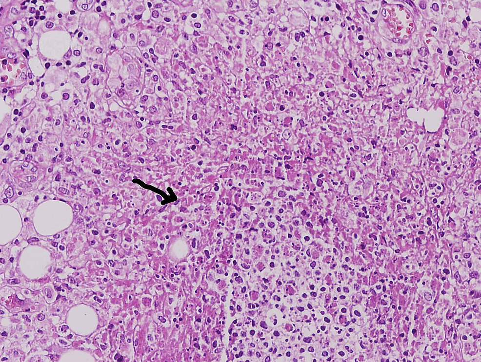 Peritoneal-biopsy-showing-non-caseating-granuloma-(Hematoxylin-and-eosin-stain)-(arrow)