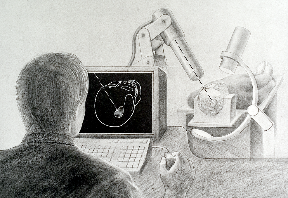 Made-in-1988-this-image-depicts-the-initial-concepts-of-the-frameless-radiosurgical-technology-which-would-eventually-become-the-CyberKnife