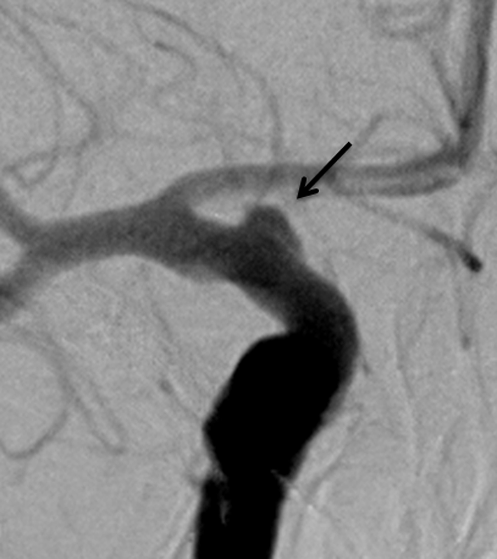 Case-1.-Digital-subtraction-angiography-demonstrating-a-broad-based-right-anterior-choroidal-aneurysm-(arrow).-
