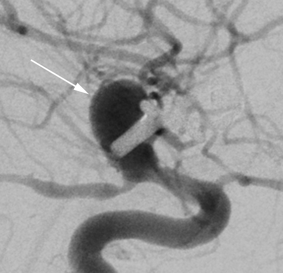 Case-1.-Digital-subtraction-angiography-from-hospital-day-14-immediately-prior-to-flow-diverter-placement-demonstrating-recurrence-of-the-aneurysm-(arrow).