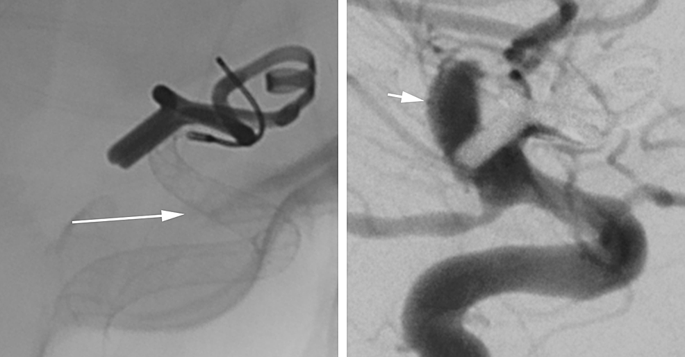 Case-1.-Unsubtracted-(left)-and-subtracted-(right)-views-from-the-same-angiographic-sequence-immediately-following-device-placement-demonstrating-complete-coverage-of-the-aneurysm-neck-by-the-device-(arrow)-and-delayed-filling-of-and-contrast-stasis-within-the-aneurysm-(arrowhead).