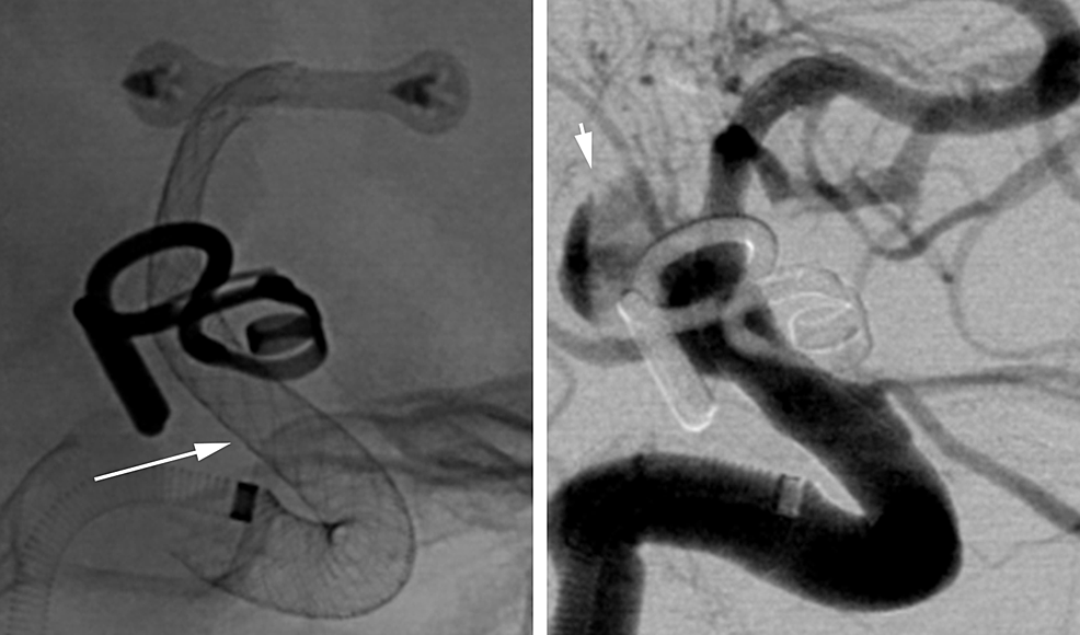 Case-2.-Unsubtracted-(left)-and-subtracted-(right)-views-from-the-same-angiographic-sequence-immediately-after-placement-of-the-second-device-demonstrating-complete-coverage-of-the-aneurysm-neck-by-the-device-(arrow)-and-delayed-filling-of-the-aneurysm-(arrowhead).