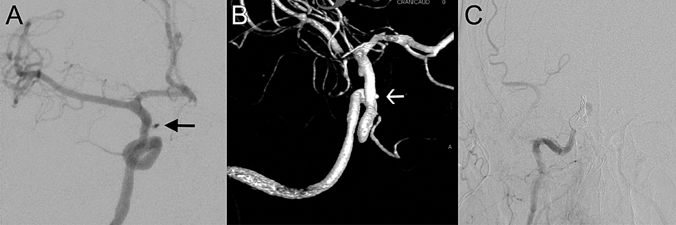 Angiogram-demonstrating-internal-carotid-artery-(ICA)-injury.-