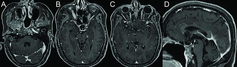 Postoperative-MRI-after-resection-of-skull-base-chondrosarcoma.-