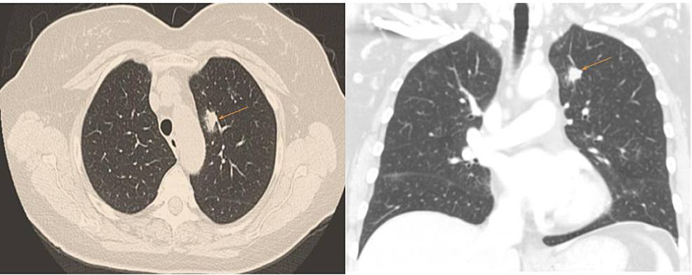 Computed-tomography-(CT)-of-the-chest-showing-2.1-x-0.9-cm-left-upper-lobe-nodule