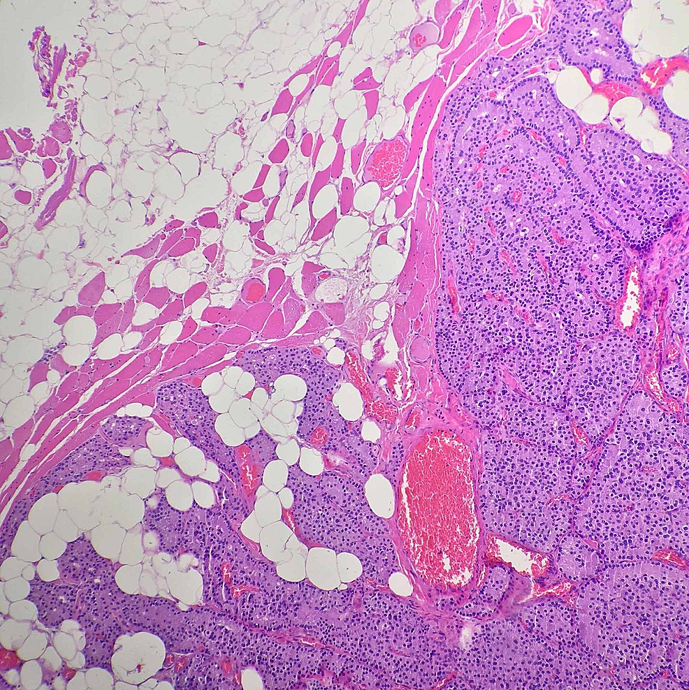 Low-magnification-H&E-stain-of-the-forearm-mass-showing-nodules-of-hyperplastic-parathyroid-tissue-with-intervening-fibro-adipose-tissue-and-skeletal-muscle.