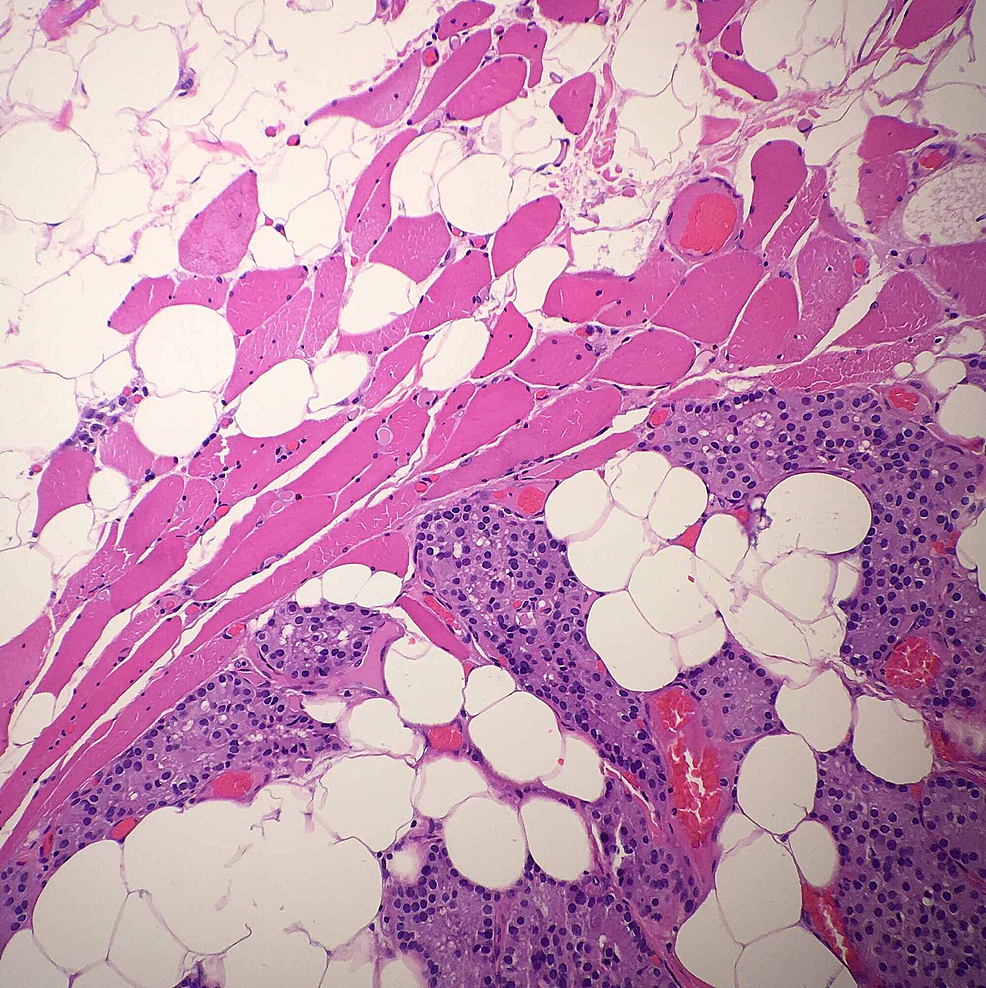 High-magnification-H&E-stain-of-the-same-mass-also-showing-parathyroid-tissue.