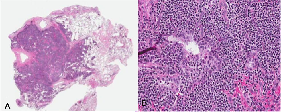 A)-Low-and-B)-high-power-showing-nodular-lymphoid-aggregates-with-lymphoepithelial-lesions
