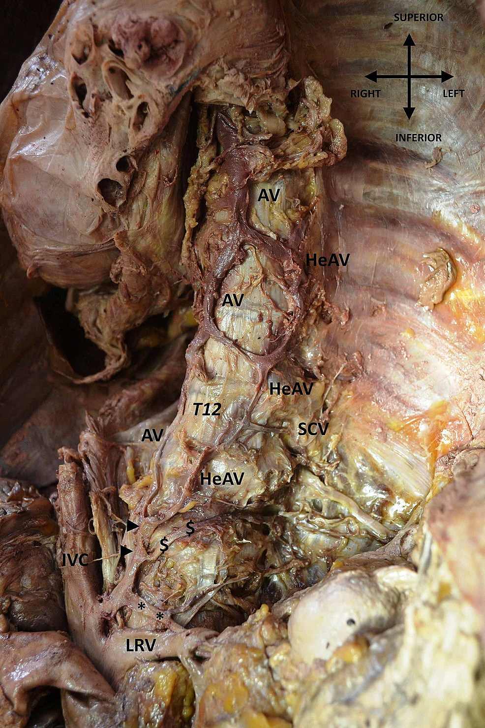 Abnormal-origin-of-azygos-vein-(AV)-system