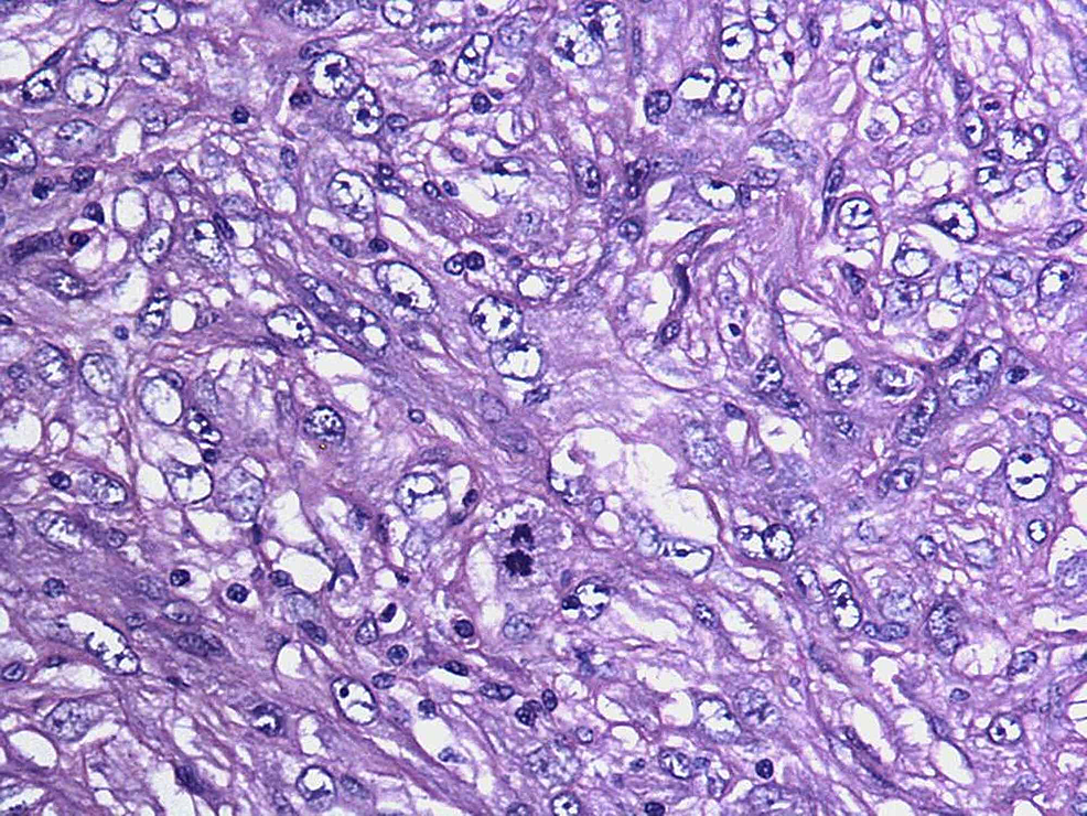 Photomicrograph-showing-nuclear-atypia,-brisk-mitoses-and-lack-of-epithelial-elements-within-the-tumor-(H&E-x200)