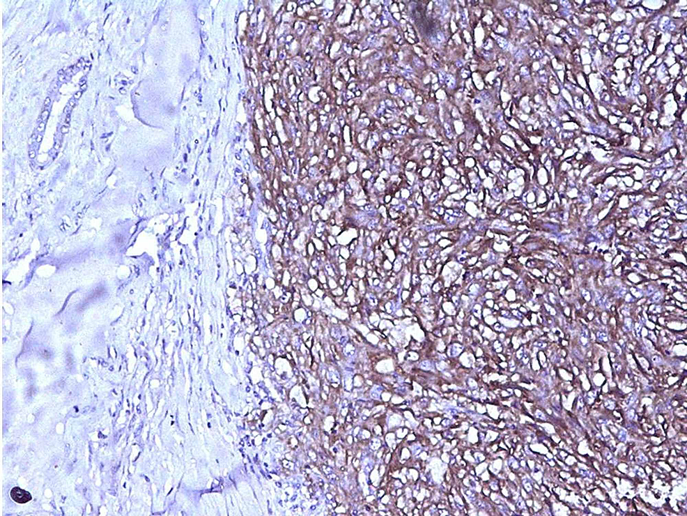 Photomicrograph-showing-immunohistochemical-positivity-of-tumor-cells-for-CD10-(x200)-