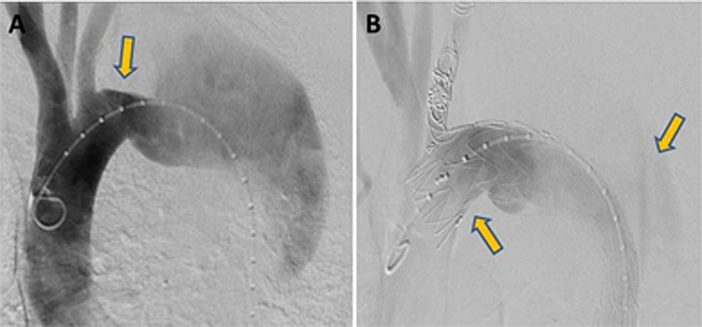 Angiogram-showed:-(A)-There-was-a-30-mm-landing-zone-between-the-left-common-carotid-artery-and-the-primary-tear-(aneurysm)-(B)-After-thoracic-endovascular-aortic-repair-for-type-B-aortic-dissection.