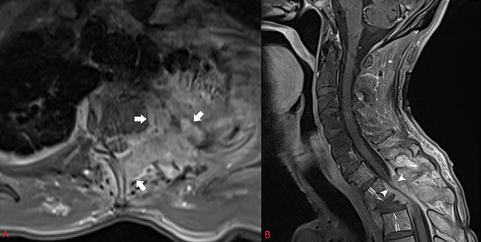 Pre-operative-axial-(A)-and-sagittal-(B)-post-contrasted-MRI-demonstrate-a-tumor-eroding-through-the-chest-wall,-vertebral-body,-pedicle,-and-posterior-elements-causing-compression-at-the-cervical-thoracic-junction,-kyphotic-deformity,-and-segmental-instability