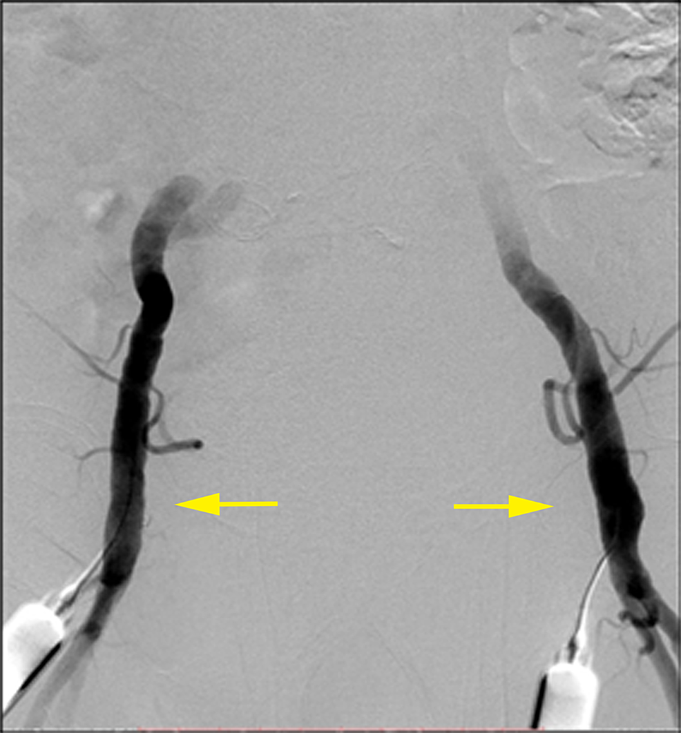 Bilateral-common-femoral-artery-percutaneous-access-(yellow-arrows)-on-anteroposterior-digital-subtraction-angiography-(DSA).