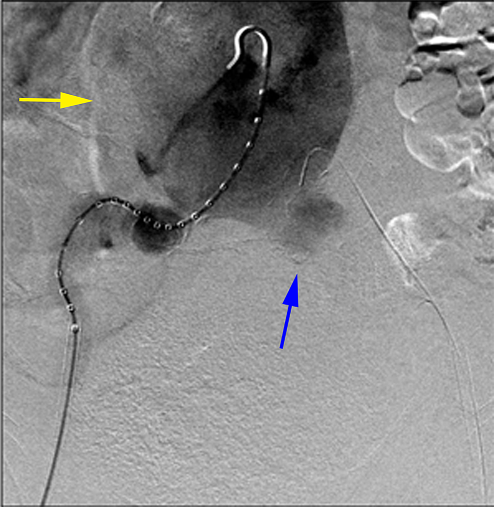 Anteroposterior-digital-subtraction-angiogram-of-the-abdominal-aorta-demonstrated-a-very-large-infrarenal-abdominal-aortic-aneurysm-(yellow-arrow)-with-a-left-common-iliac-artery-aneurysm-(blue-arrow).