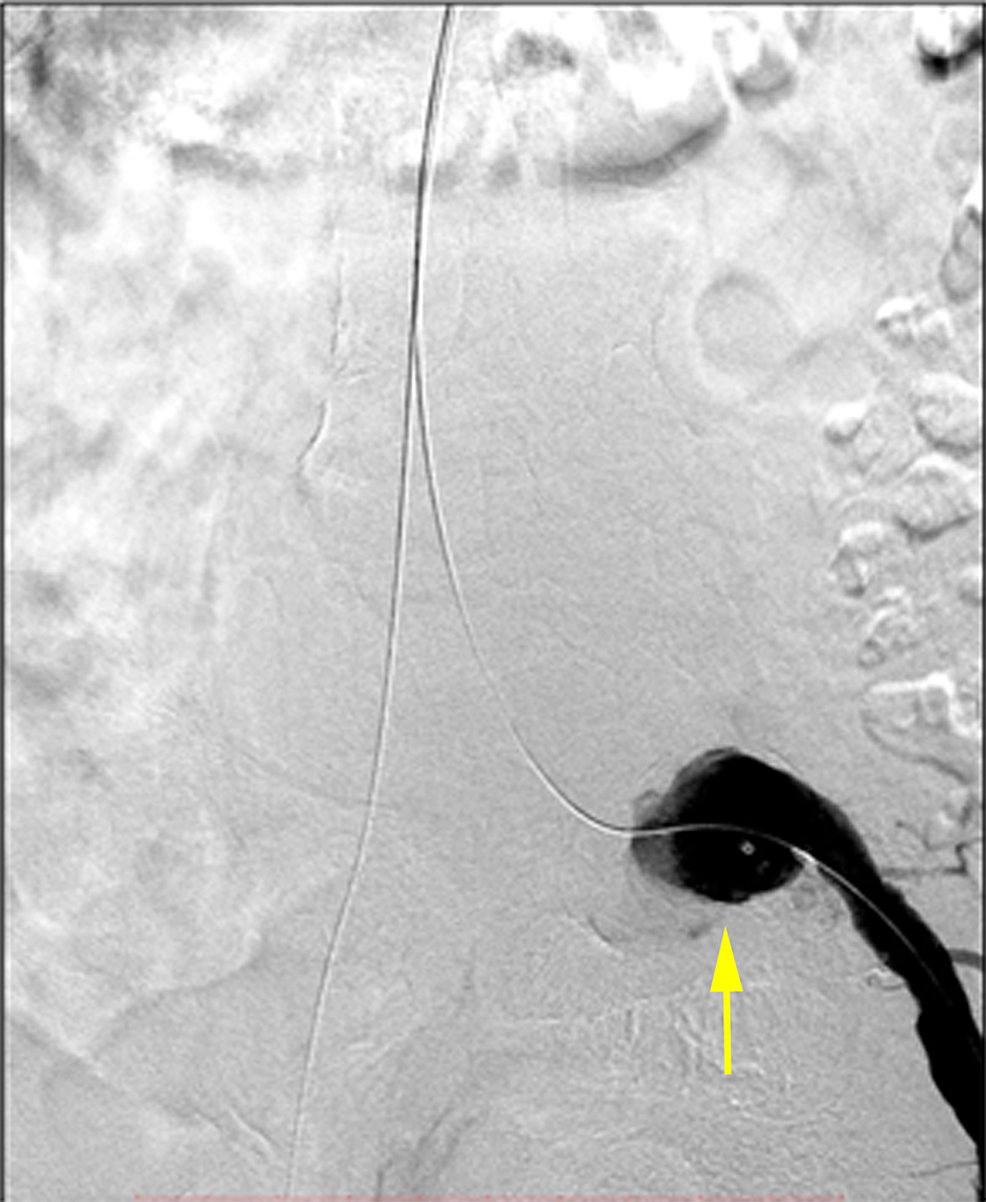 The-left-internal-iliac-artery-was-embolized-using-an-18-mm-AVP-II.-The-remaining-aneurysm-of-the-left-common-iliac-artery-is-demonstrated-(yellow-arrow).-