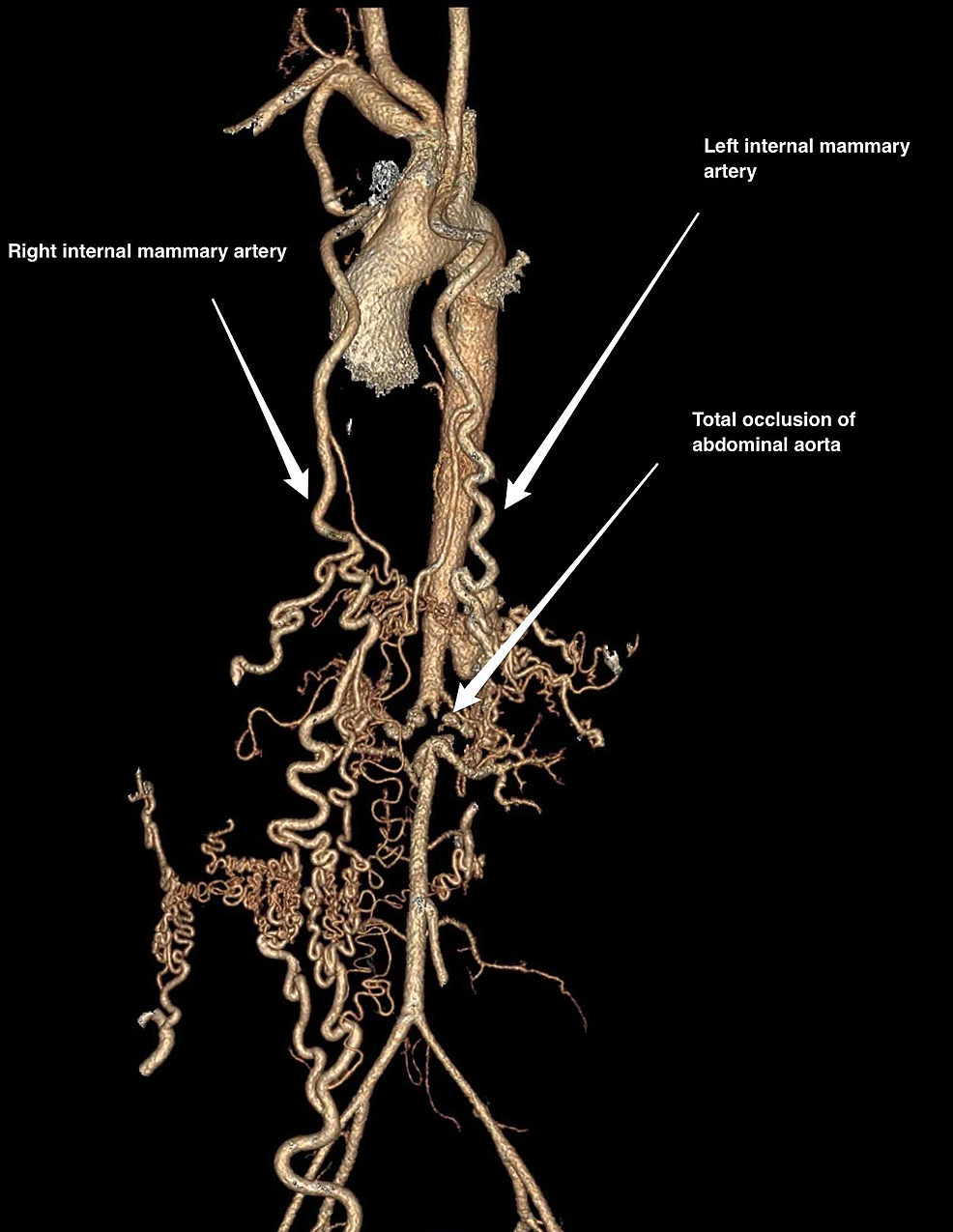 Computed-tomography-aortogram-showing-collateral-vessels-formed-by-the-right-and-left-internal-mammary-artery