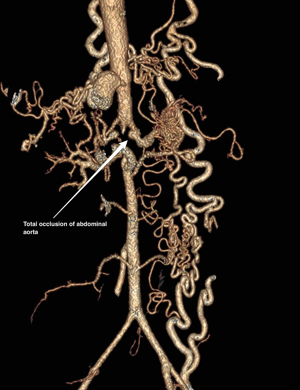 Computed-tomography-aortogram-showing-total-occlusion-of-the-abdominal-aorta
