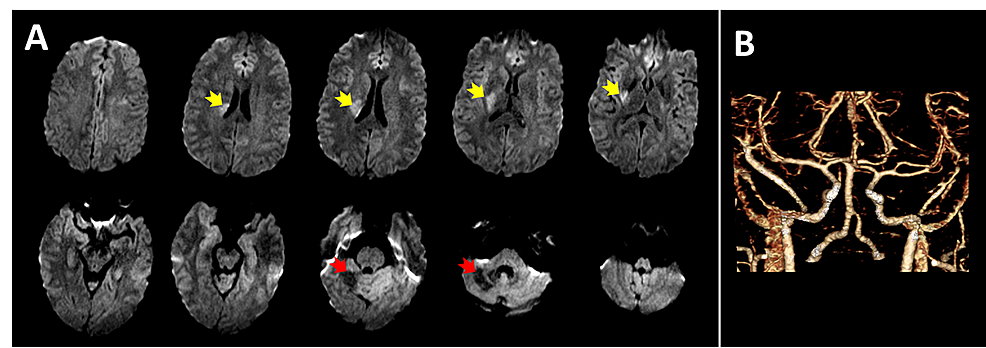 Imaging-of-the-brain-and-vasculature