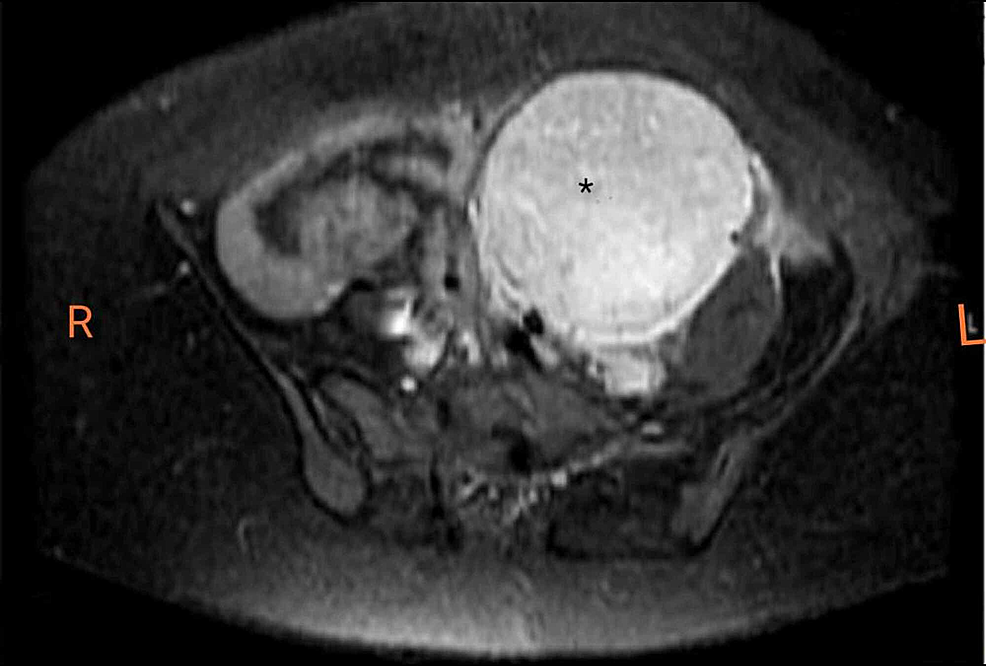 T1-Weighted-MRI-showing-left-sided-retro-peritoneal-homogeneously-enhancing,-well-circumscribed-mass-(asterisk).