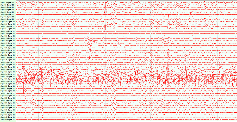 Wireless-ECoG-screenshot-showing-interictal-spikes-over-the-channels-35-37-(covering--the-inferior-temporal-gyrus)-in-patient-1