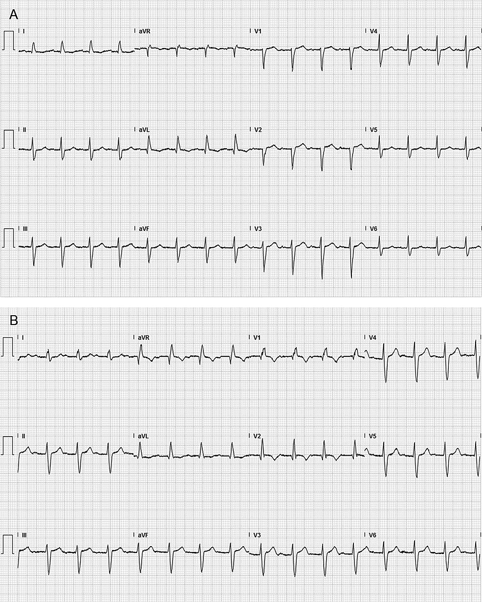 A:-Electrocardiogram-before-treatment-with-atezolizumab-showed-only-first-degree-atrioventricular-block.-B:-New-right-bundle-branch-block-and-left-anterior-fascicular-block-were-seen-after-atezolizumab-treatment