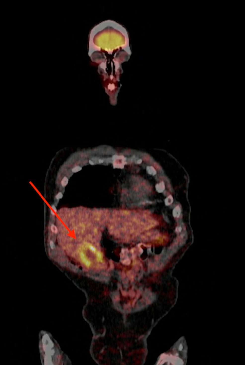 Positron-emission-tomography-scan-showing-increased-update-around-the-gallbladder.