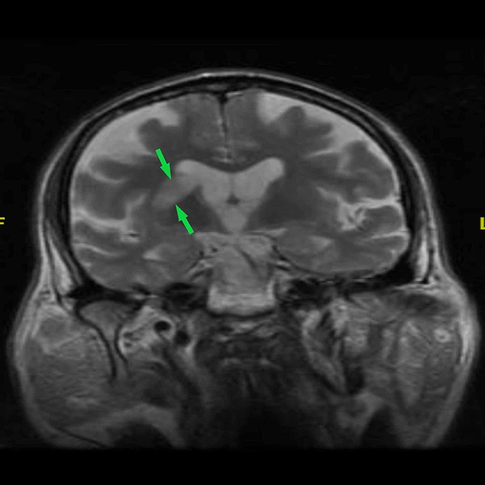 Brain-MRI-showing-right-corona-radiata-and-right-basal-ganglia-ischemic-lesion-(green-arrows)-in-T2-weighted-MRI-(coronal-plane)