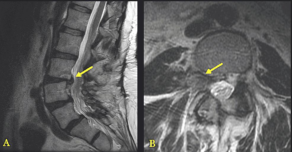 Preoperative-Magnetic-Resonance-Imaging-(MRI)