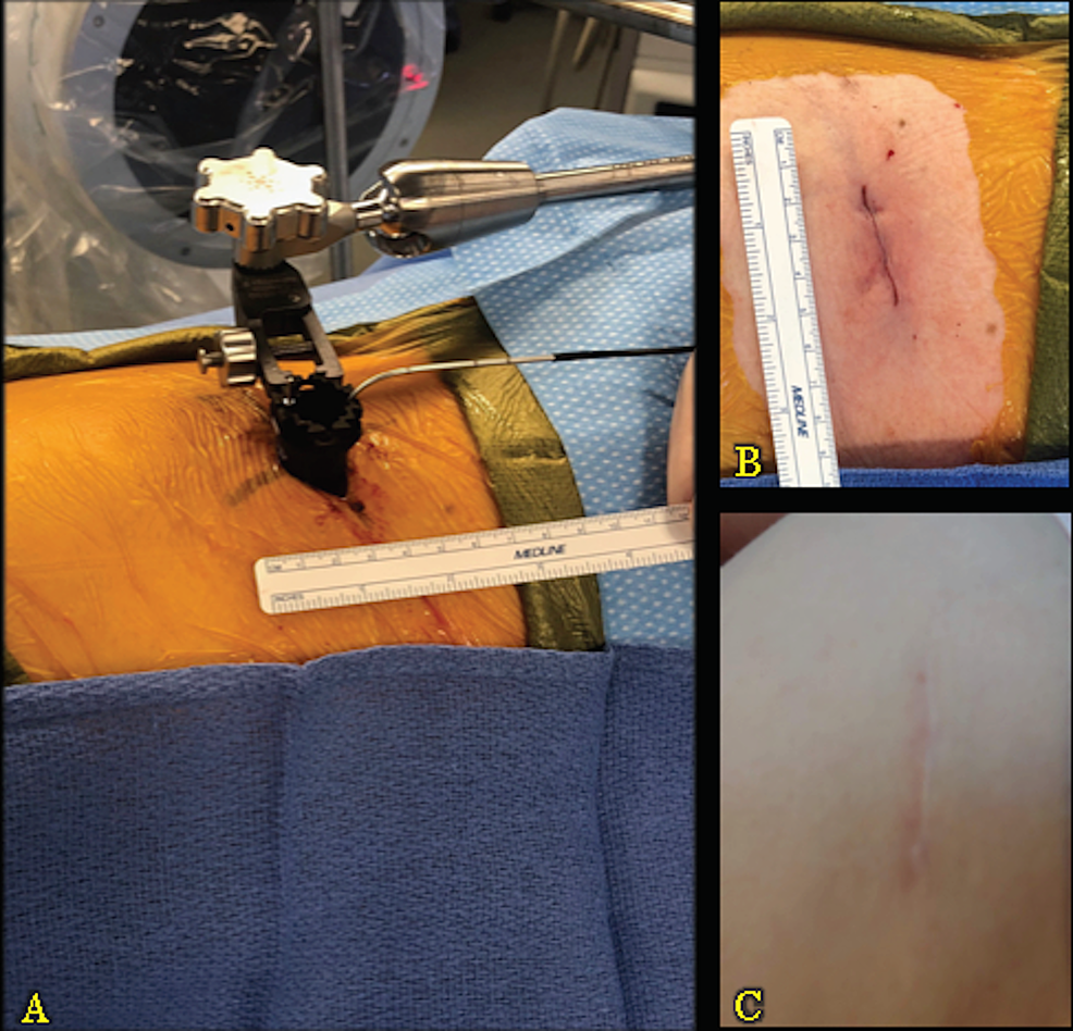 Intraoperative-Exposure-and-Lateral-Scar