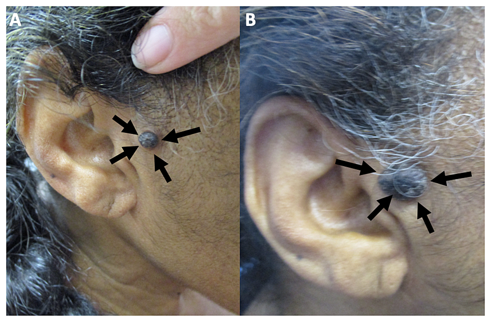Clinical-presentation-of-melanoacanthoma-on-the-right-preauricular-area-of-a-65-year-old-woman