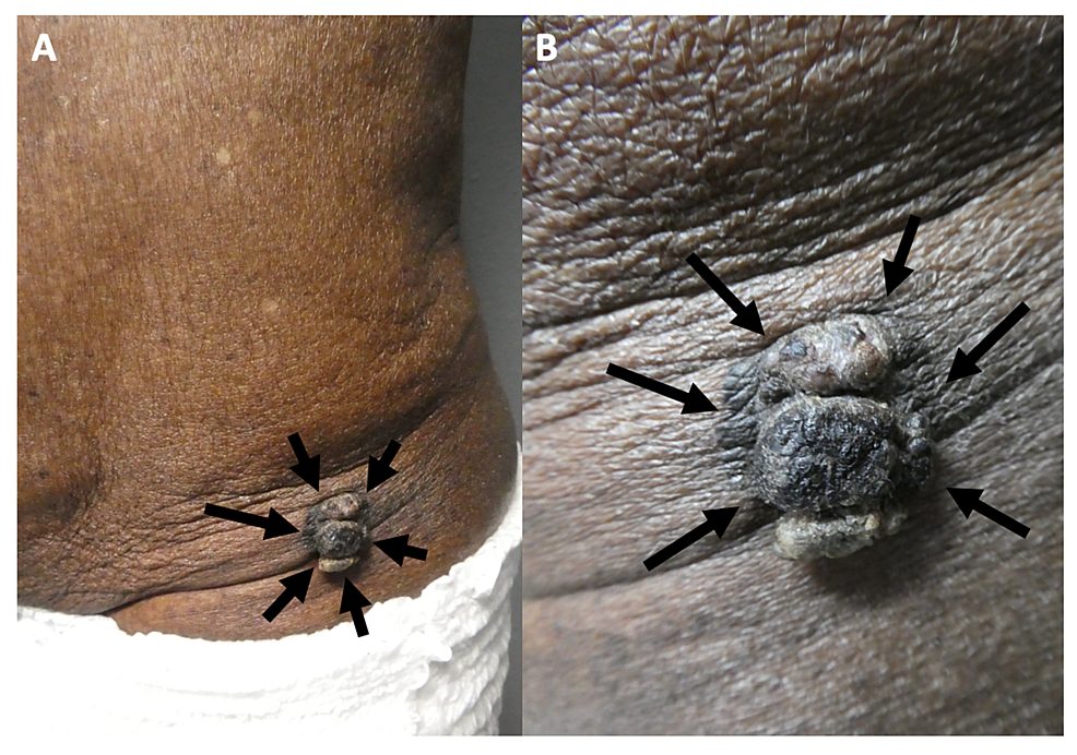 Melanoacanthoma-on-the-left-lower-abdomen-of-an-85-year-old-man