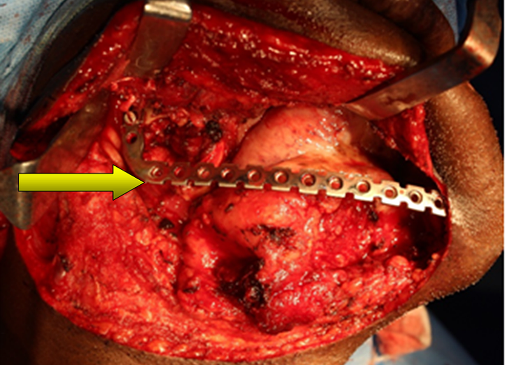 Reconstruction-of-the-surgical-defect-with-a-stainless-steel-reconstruction-plate