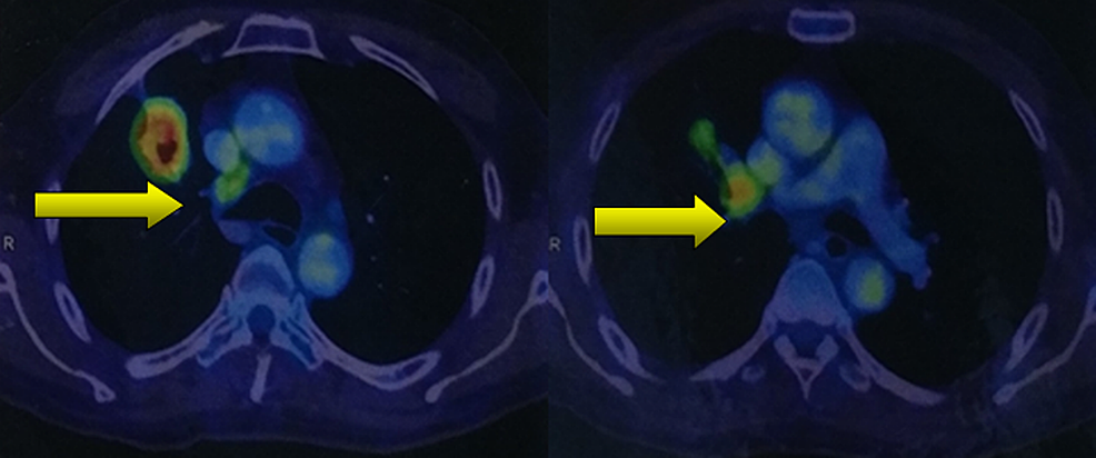 Positron-emission-tomography/computed-tomography-(PET/CT)-scan-showing-cavitary-lesions-in-the-right-lung,-indicating-the-site-of-the-primary-tumour