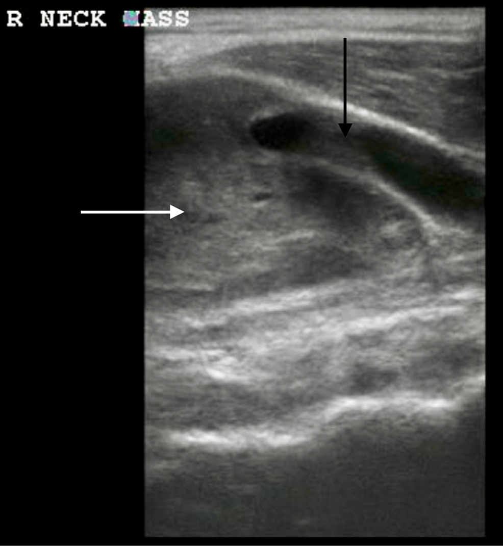 A-bedside-ultrasound-demonstrating-a-homogenous-neck-mass-(white-arrow)-at-the-level-of-the-right-carotid-artery-bifurcation-(black-arrow).